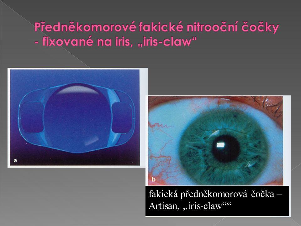 """Předněkomorové fakické nitrooční čočky - fixované na iris, """"iris-claw"""