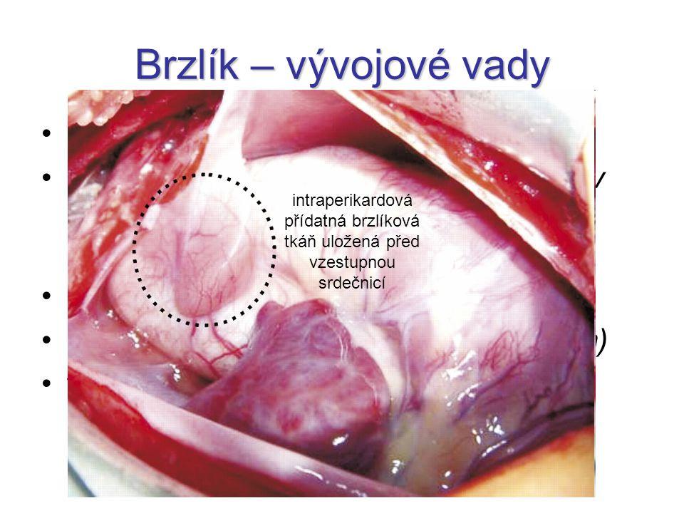 Brzlík – vývojové vady aplasia thymi