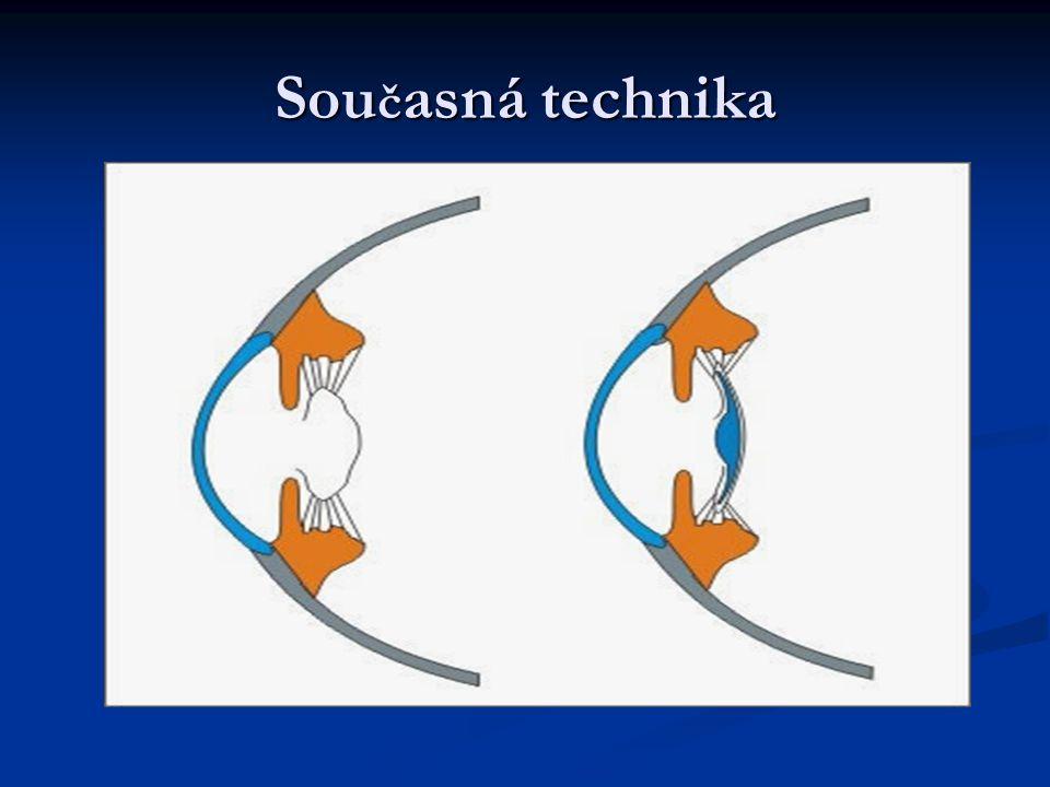 Současná technika