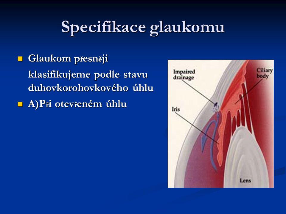Specifikace glaukomu Glaukom přesněji