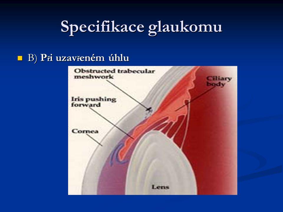 Specifikace glaukomu B) Při uzavřeném úhlu