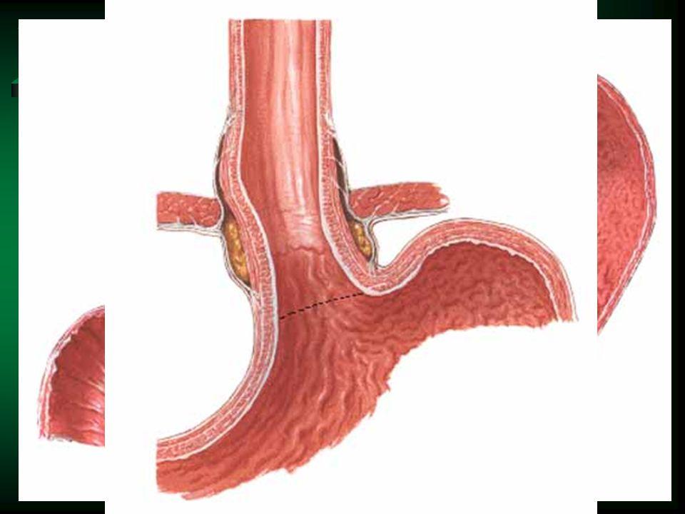 Žaludek – stavba stěny tunica mucosa