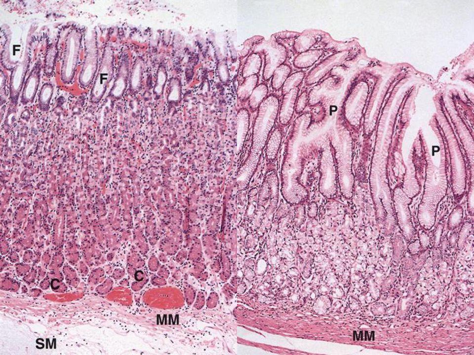 Žaludeční žlázky foveolae gastricae gll. cardiales gastri – hluboké