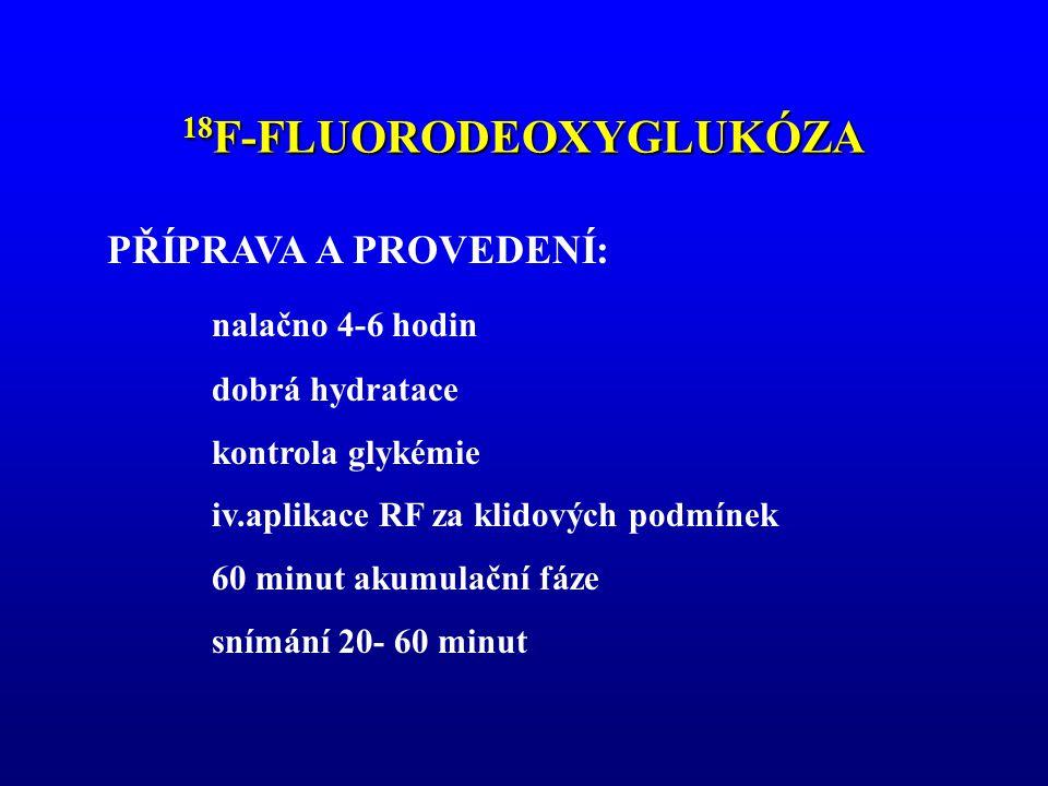 18F-FLUORODEOXYGLUKÓZA