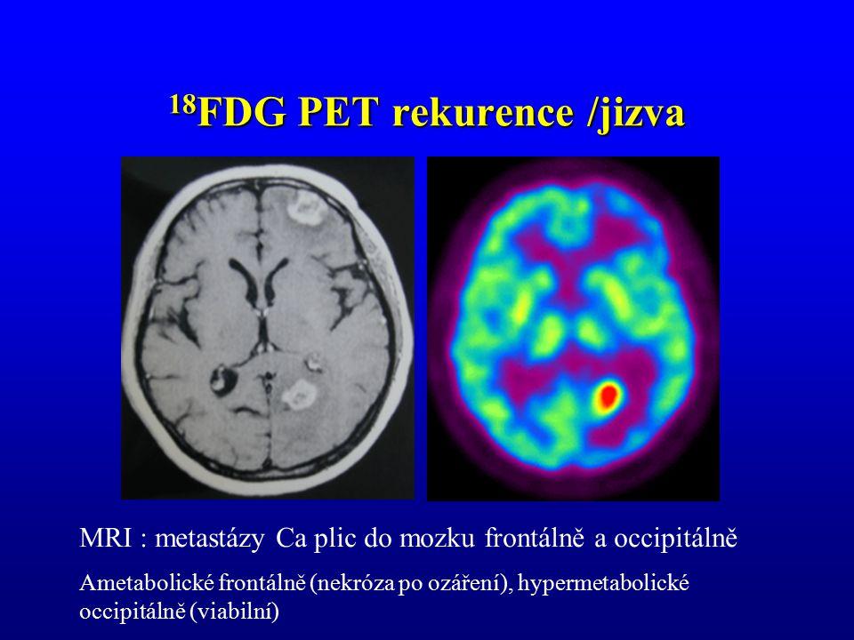 18FDG PET rekurence /jizva