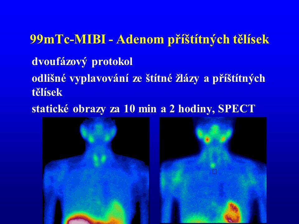 99mTc-MIBI - Adenom příštítných tělísek