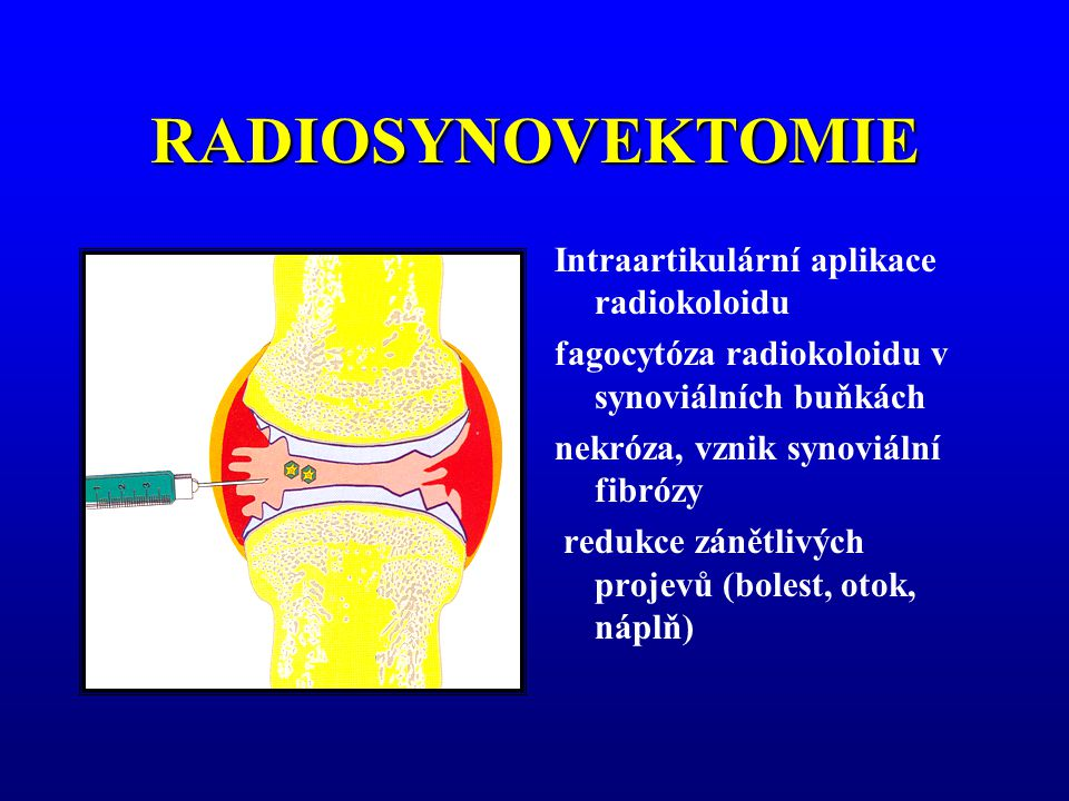 RADIOSYNOVEKTOMIE Intraartikulární aplikace radiokoloidu