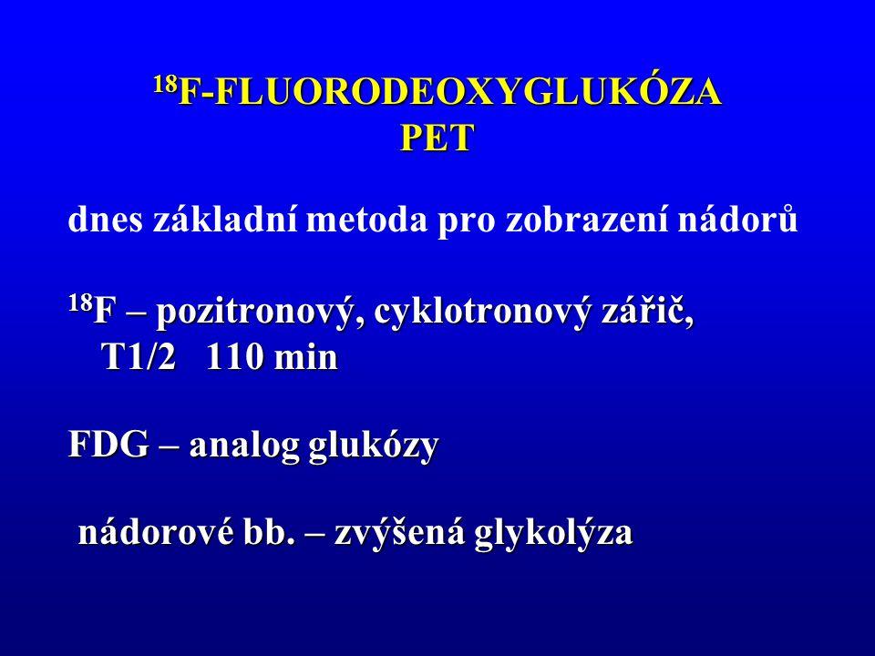 18F-FLUORODEOXYGLUKÓZA PET