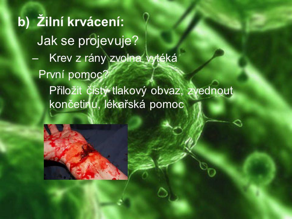 Žilní krvácení: Jak se projevuje Krev z rány zvolna vytéká