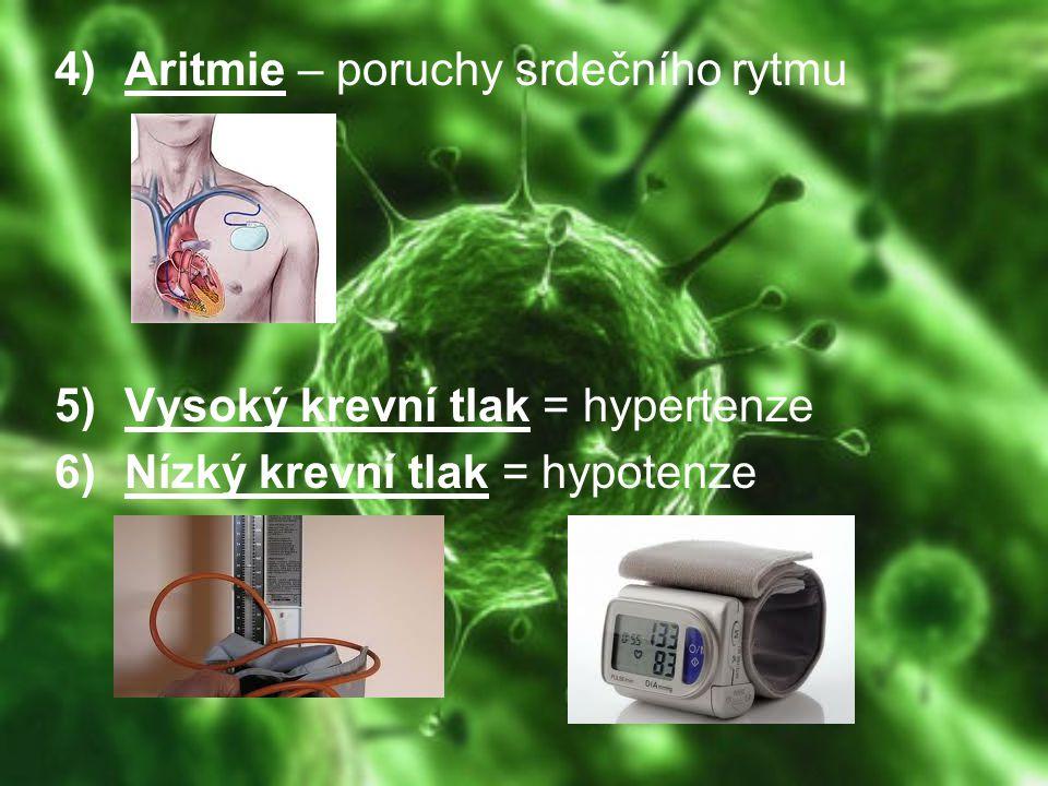 Aritmie – poruchy srdečního rytmu