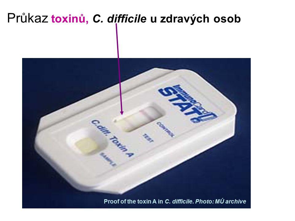 Průkaz toxinů, C. difficile u zdravých osob