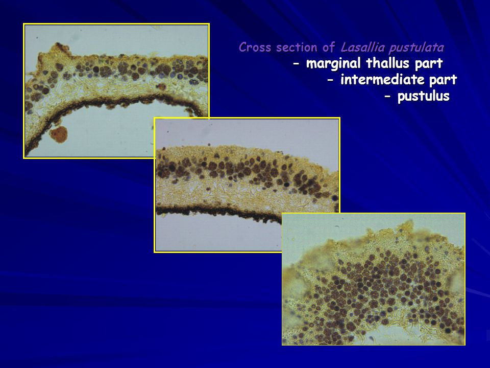 Cross section of Lasallia pustulata. - marginal thallus part