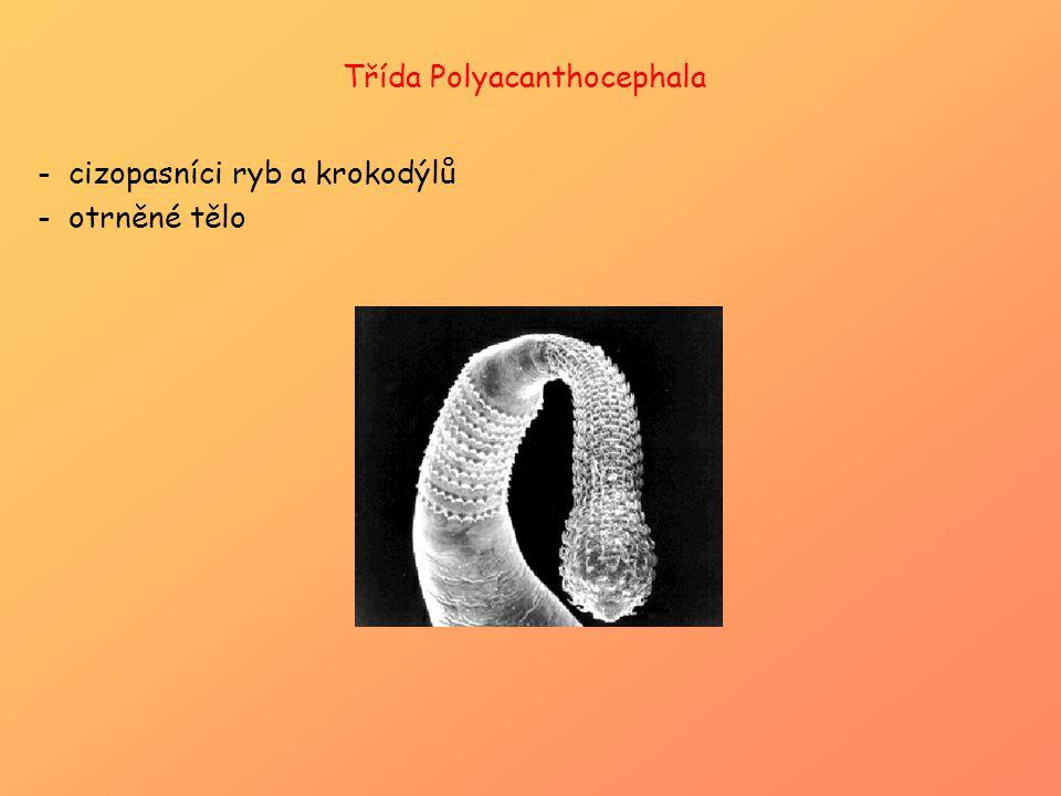 Třída Polyacanthocephala