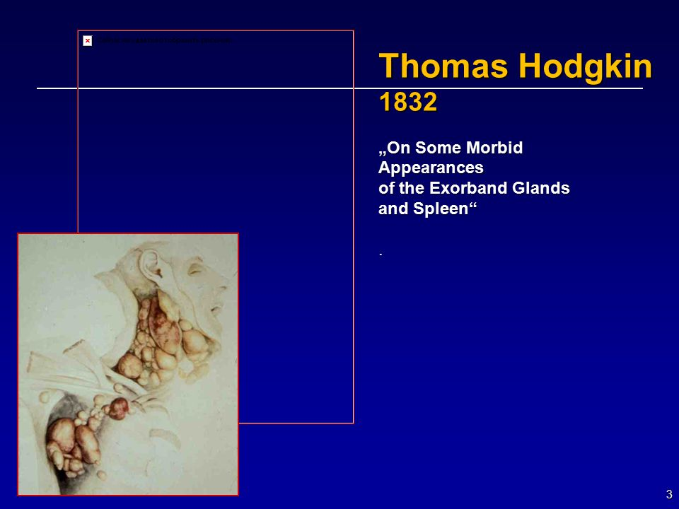 "Thomas Hodgkin 1832 ""On Some Morbid Appearances of the Exorband Glands"