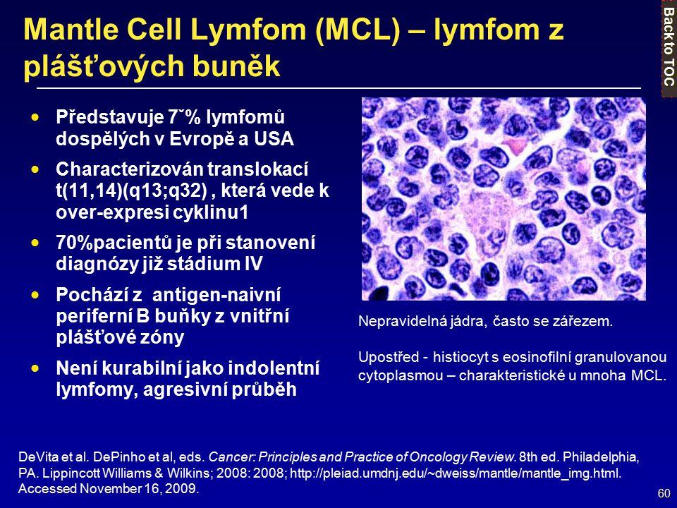 Mantle Cell Lymfom (MCL) – lymfom z plášťových buněk