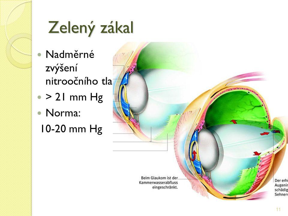 Zelený zákal Nadměrné zvýšení nitroočního tlaku > 21 mm Hg Norma: