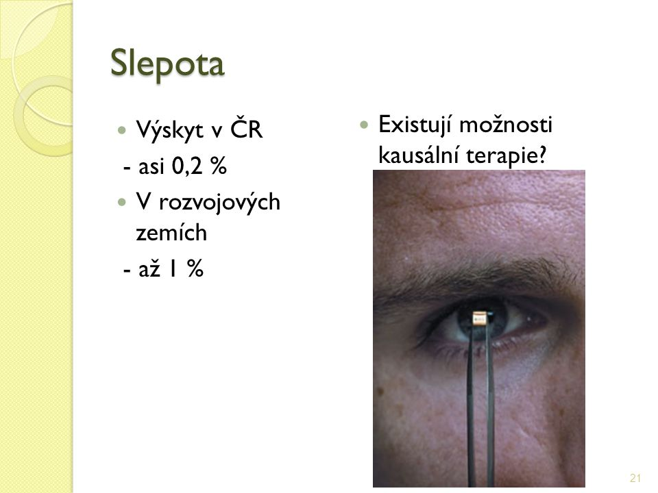 Slepota Existují možnosti kausální terapie Výskyt v ČR - asi 0,2 %