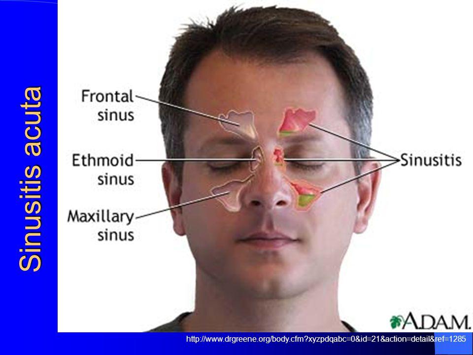 Sinusitis acuta http://www.drgreene.org/body.cfm xyzpdqabc=0&id=21&action=detail&ref=1285