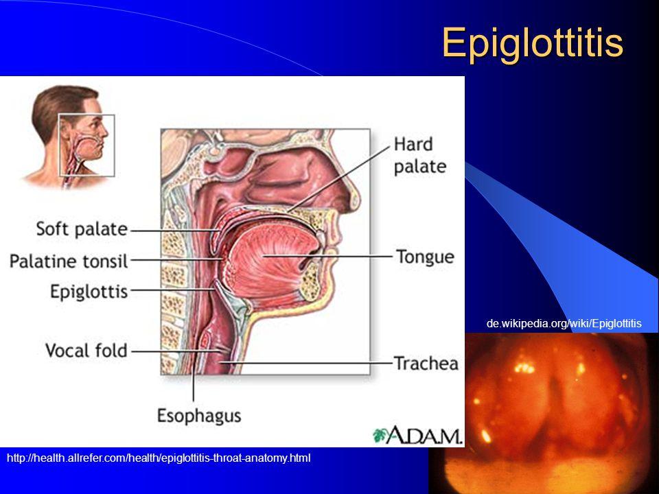 Epiglottitis de.wikipedia.org/wiki/Epiglottitis