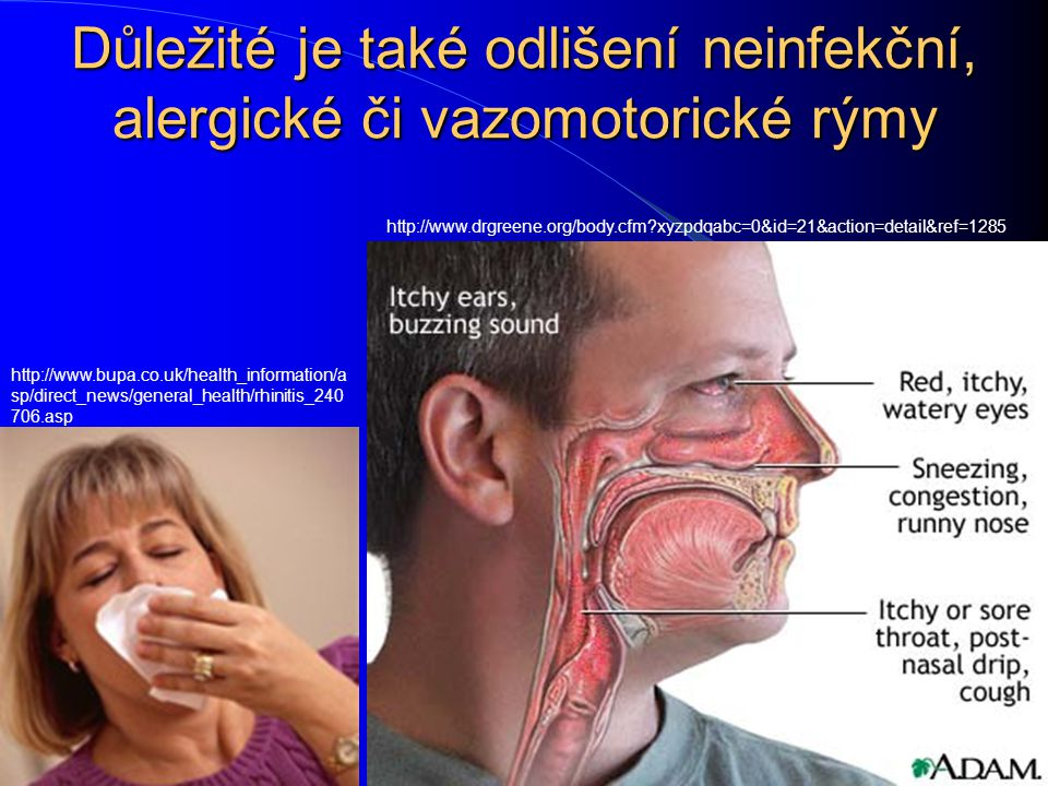 Důležité je také odlišení neinfekční, alergické či vazomotorické rýmy