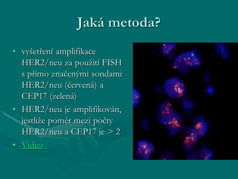 Jaká metoda vyšetření amplifikace HER2/neu za použití FISH s přímo značenými sondami HER2/neu (červená) a CEP17 (zelená)