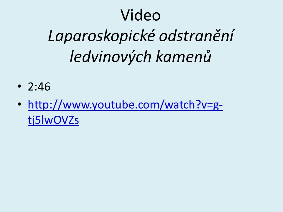 Video Laparoskopické odstranění ledvinových kamenů