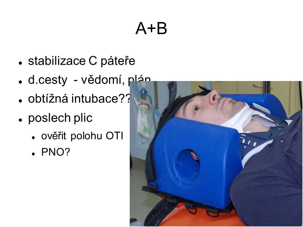 A+B stabilizace C páteře d.cesty - vědomí, plán obtížná intubace