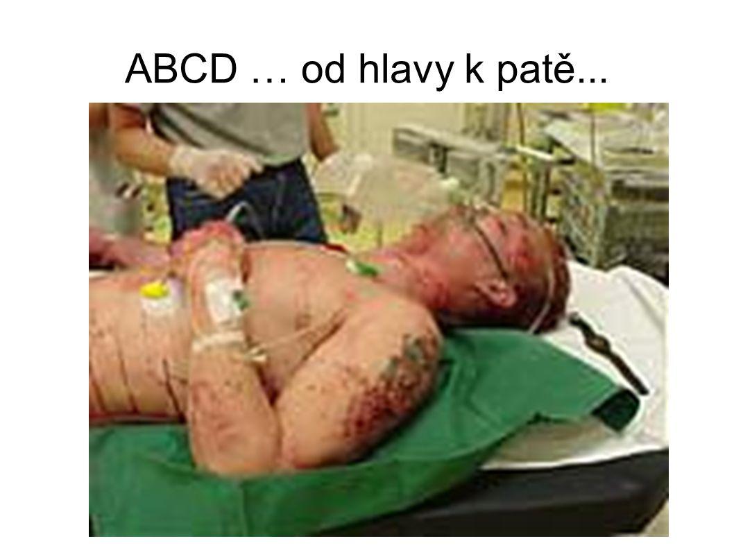 ABCD … od hlavy k patě...