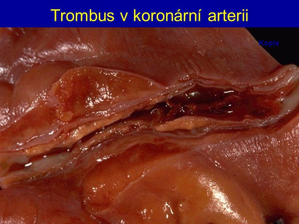 Trombus v koronární arterii