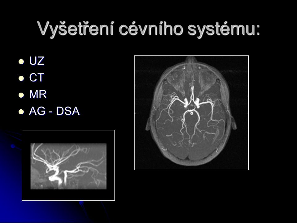 Vyšetření cévního systému: