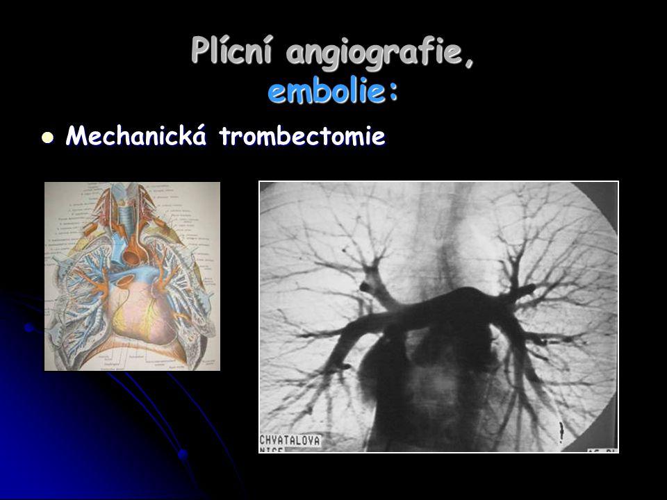 Plícní angiografie, embolie: