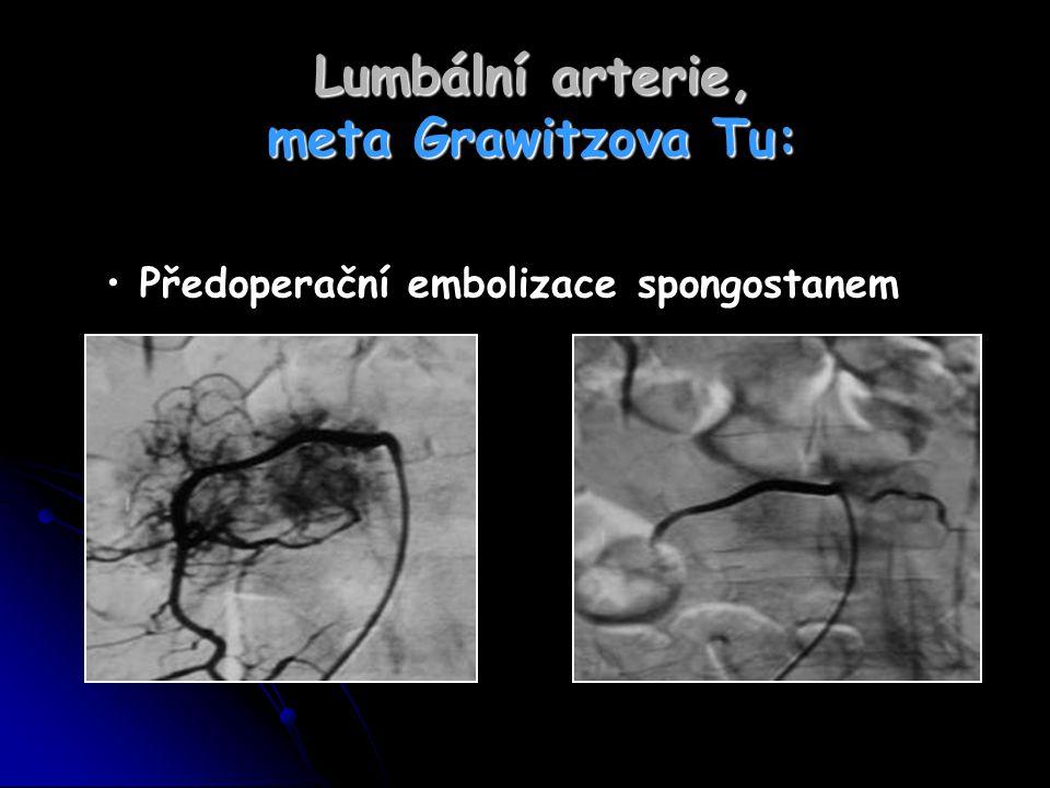 Lumbální arterie, meta Grawitzova Tu:
