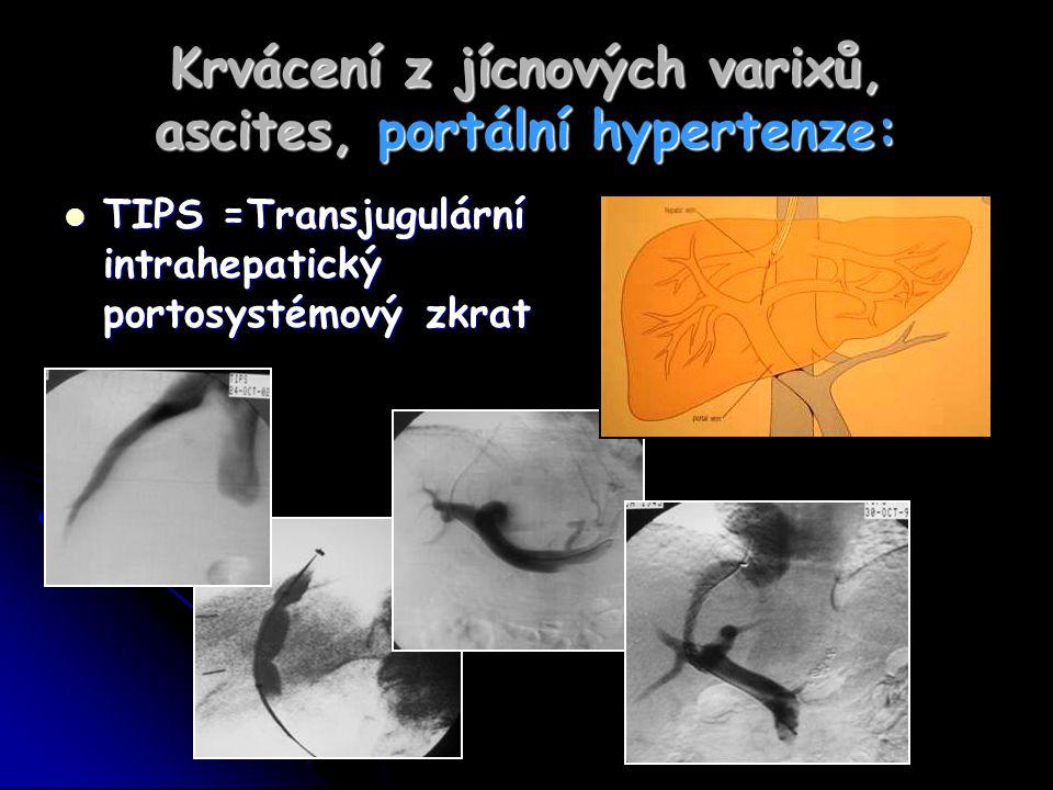 Krvácení z jícnových varixů, ascites, portální hypertenze: