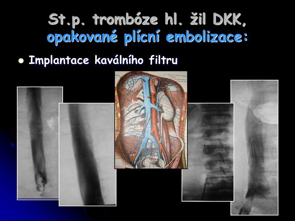St.p. trombóze hl. žil DKK, opakované plícní embolizace: