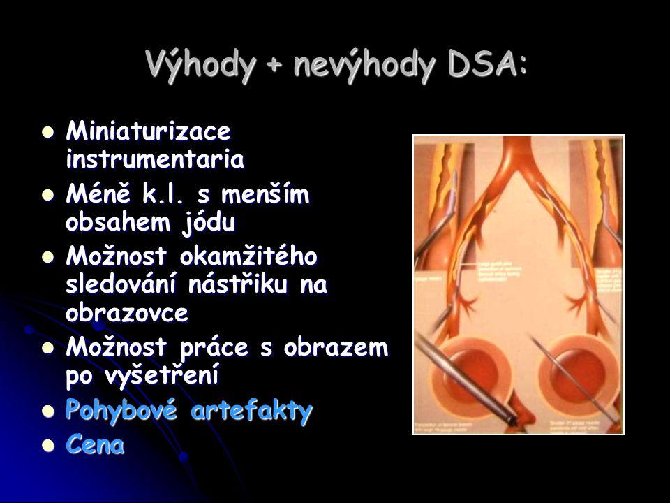 Výhody + nevýhody DSA: Miniaturizace instrumentaria
