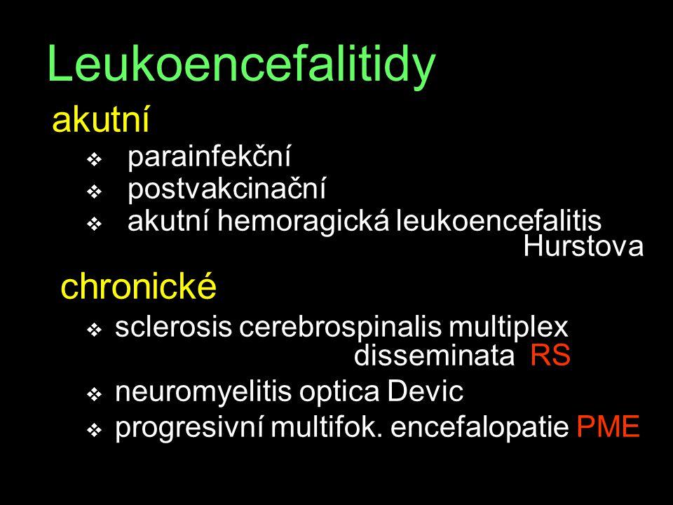 Leukoencefalitidy akutní parainfekční postvakcinační