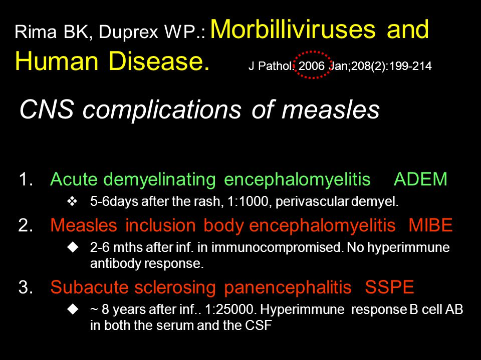 CNS complications of measles