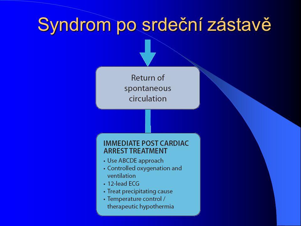 Syndrom po srdeční zástavě