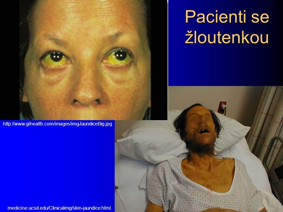 Pacienti se žloutenkou