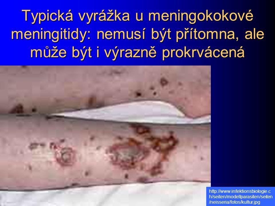 Typická vyrážka u meningokokové meningitidy: nemusí být přítomna, ale může být i výrazně prokrvácená