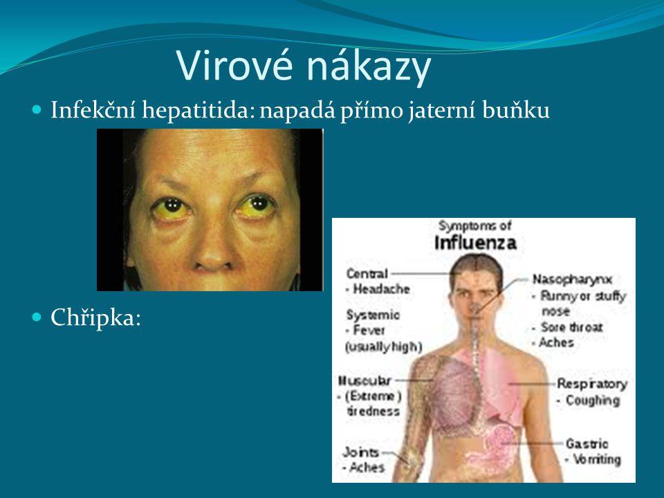 Virové nákazy Infekční hepatitida: napadá přímo jaterní buňku Chřipka:
