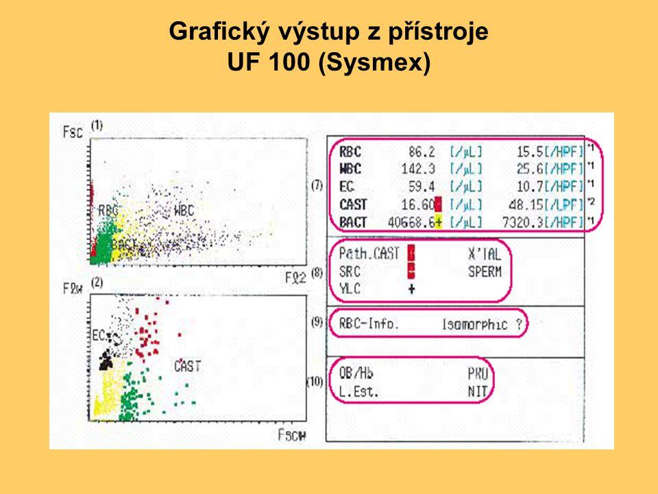 Grafický výstup z přístroje UF 100 (Sysmex)
