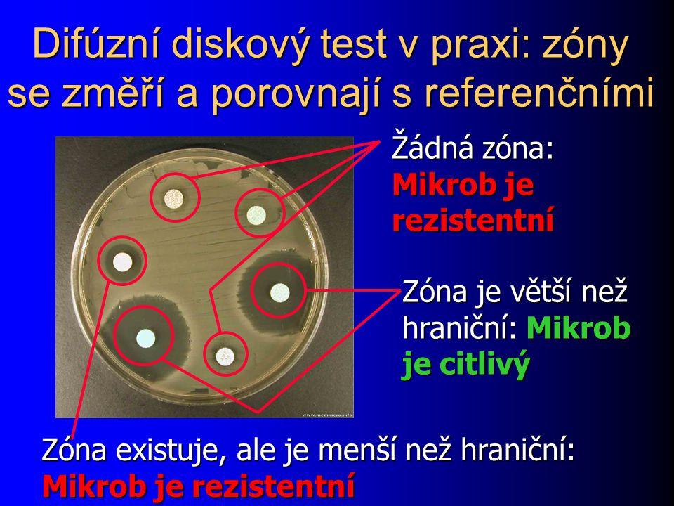 Difúzní diskový test v praxi: zóny se změří a porovnají s referenčními
