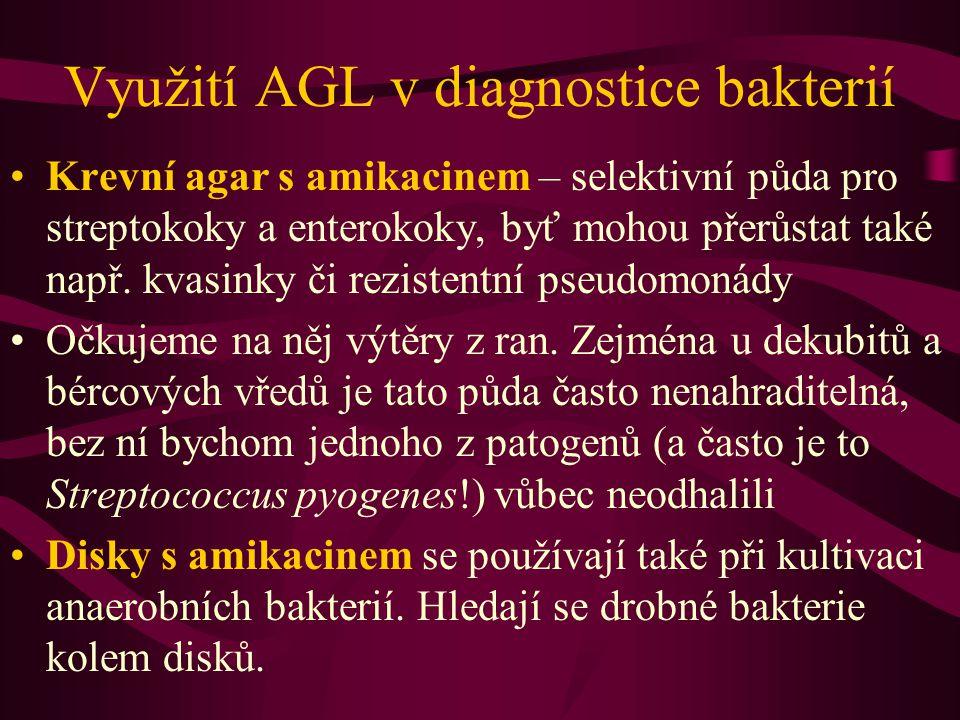 Využití AGL v diagnostice bakterií