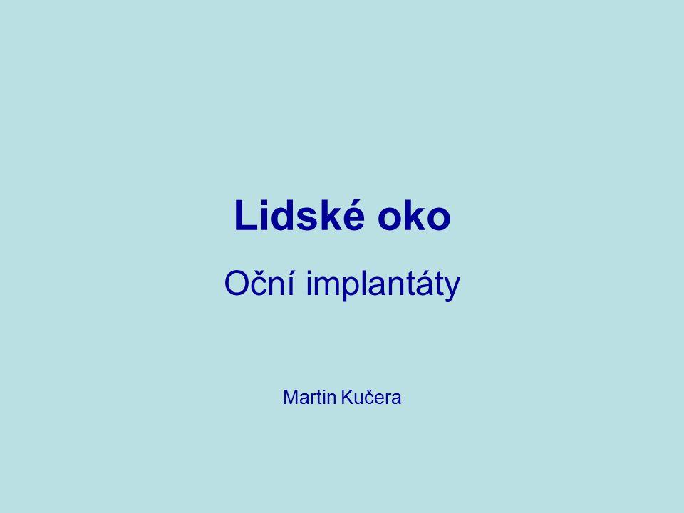 Oční implantáty Martin Kučera