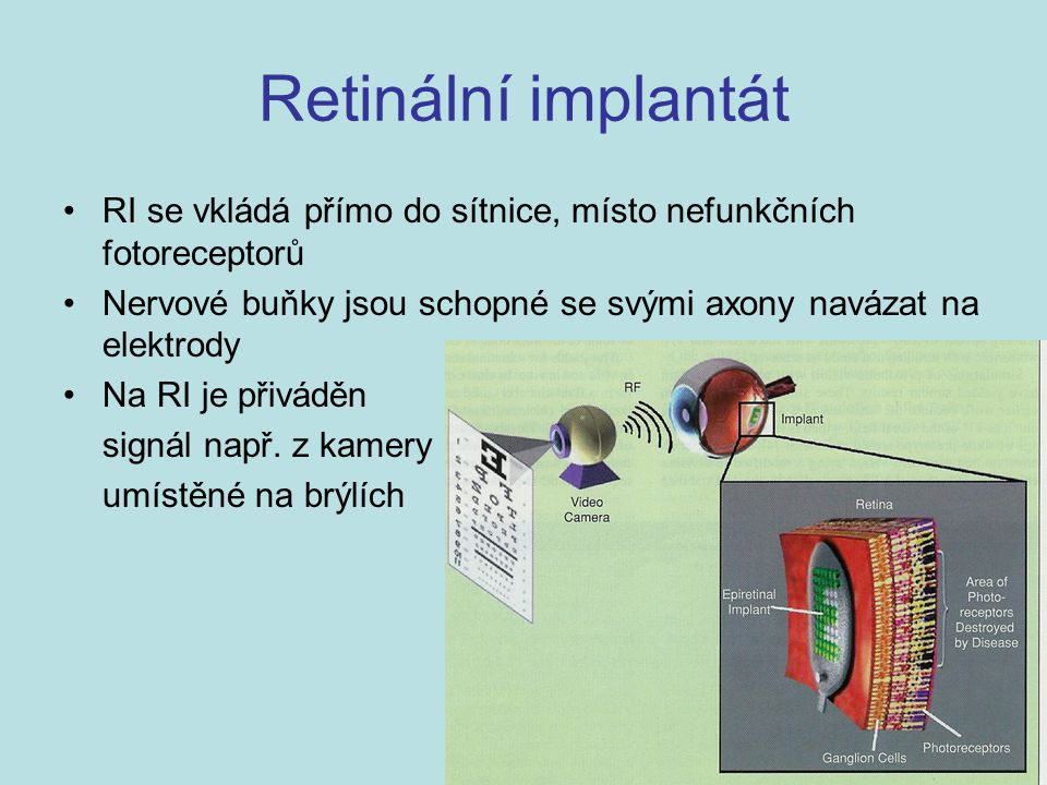 Retinální implantát RI se vkládá přímo do sítnice, místo nefunkčních fotoreceptorů. Nervové buňky jsou schopné se svými axony navázat na elektrody.