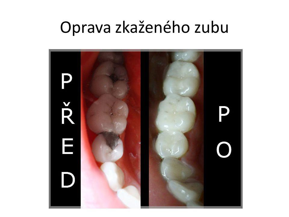 Oprava zkaženého zubu