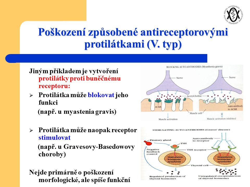 Poškození způsobené antireceptorovými protilátkami (V. typ)