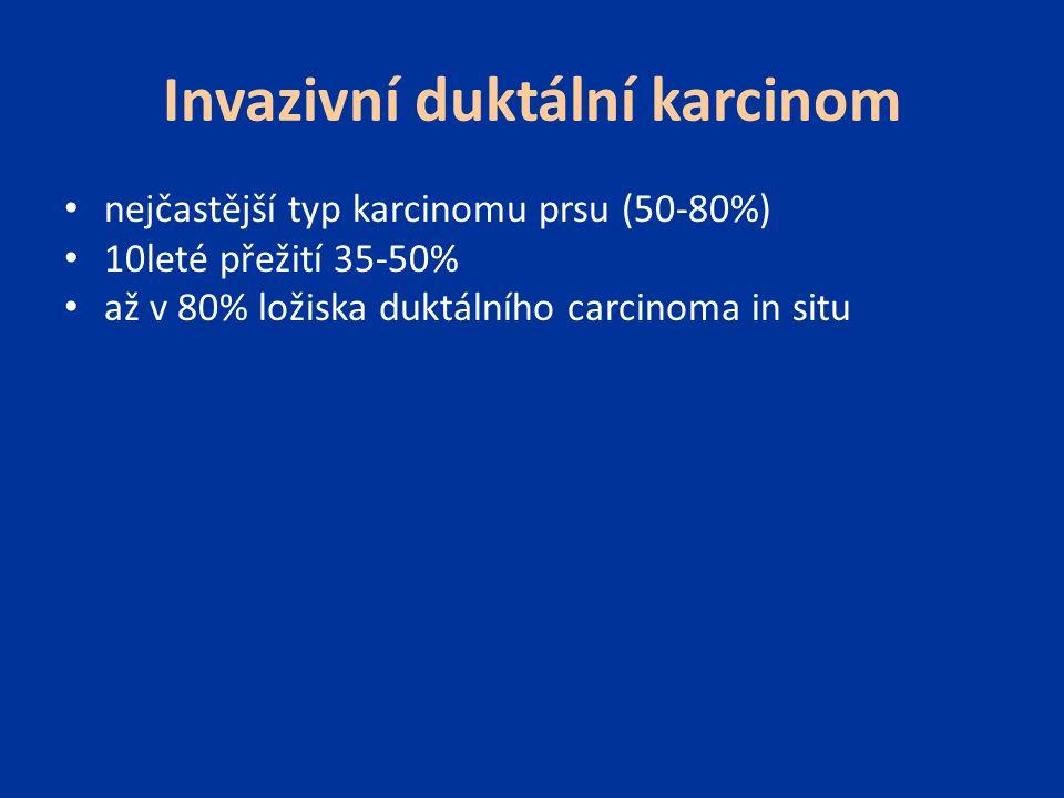 Invazivní duktální karcinom