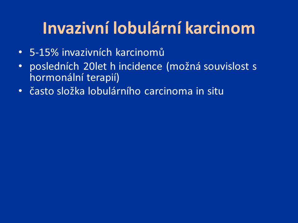 Invazivní lobulární karcinom